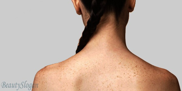 How to get rid of back acne overnight – Home Remedies are the Best for it