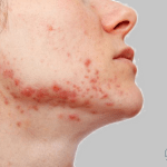 08 Natural Methods Show You – How to Get Rid of Red Acne Scars Fast