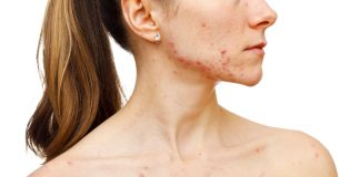 How to Get Rid of Chest Acne Fast